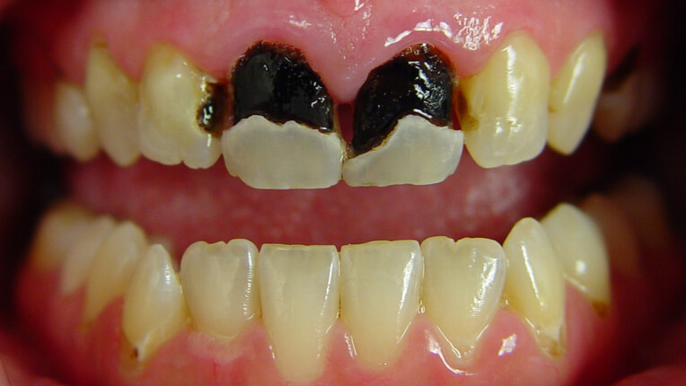 Βefore porcelain crowns and veneers