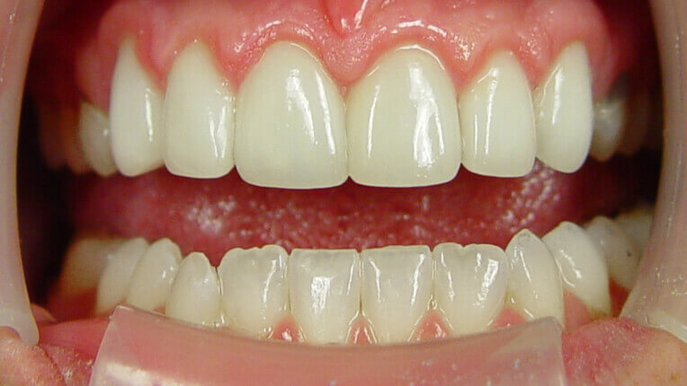 Αfter porcelain crowns and veneers